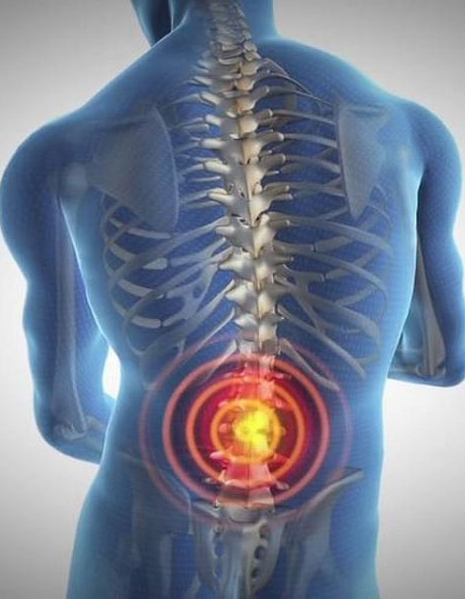 Minimally Invasive Spine Surgery In Tampa Bay, Florida